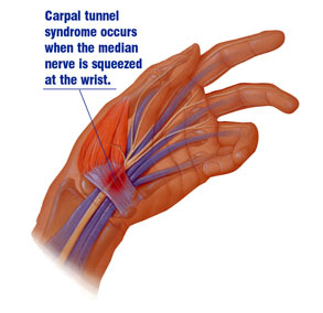 PT for Carpal Tunnel Syndrome