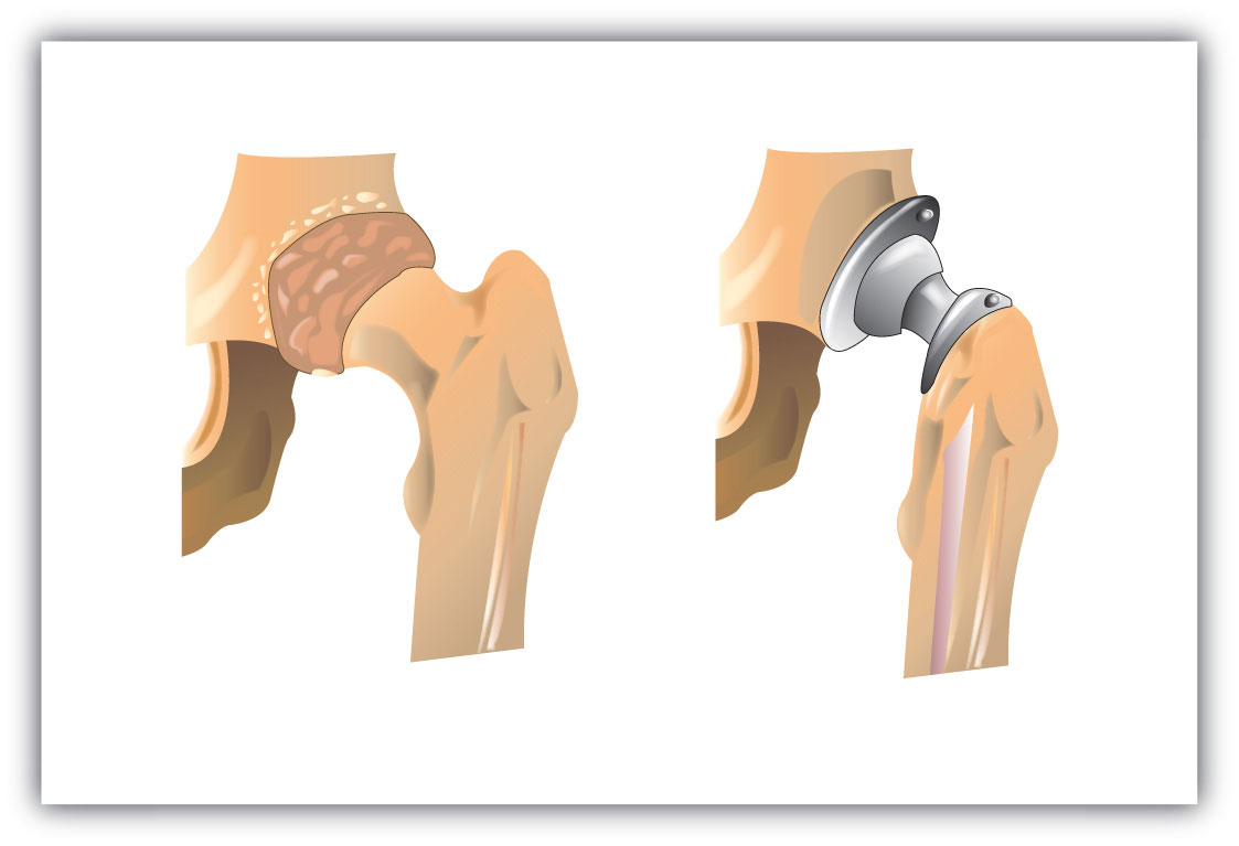 Total Hip Replacement Enhanced Physical Therapy