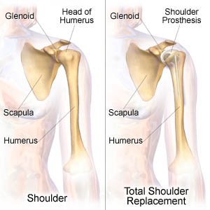 Post-Op Rehab for Total Shoulder Replacement